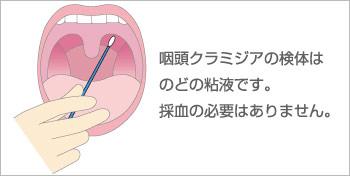 咽頭クラミジアの検体採取