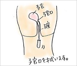 淋病検査キットの使用法